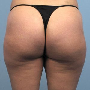 Nationaal Huidcentrum Liposculptuur, de meest verfijnde vorm van liposuctie