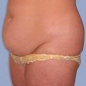 Nationaal Huidcentrum Liposuctie met bodytite