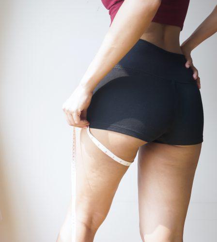 vrouw die benen opmeet met een centimeter voorafgaand aan liposuctie