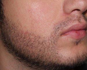 Nationaal Huidcentrum Haartransplantatie voor een blijvende haardos