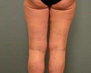 Nationaal Huidcentrum Liposuctie benen