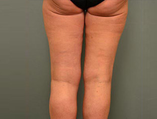 Liposuctie benen na