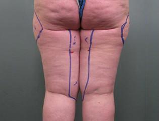 Liposuctie benen voor