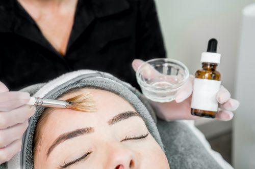 behandeling van huid met chemische peeling door de huidtherapeute