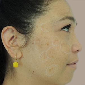 Nationaal Huidcentrum Pigmentbehandelingen voor een egale huid