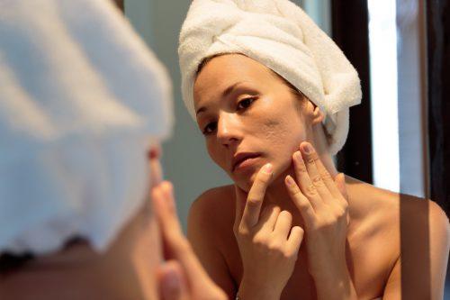 jonge vrouw bekijkt haar acne littekens in de spiegel