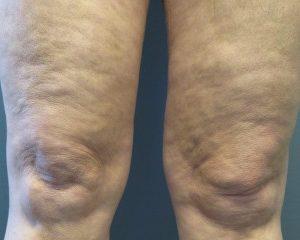 Nationaal Huidcentrum Bindweefselmassage: een huidverstrakkende kuur