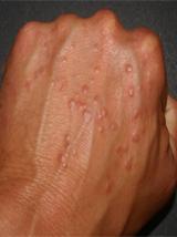 behandel onderhuidse ontsteking