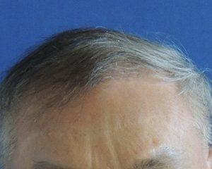 Nationaal Huidcentrum Haartransplantatie