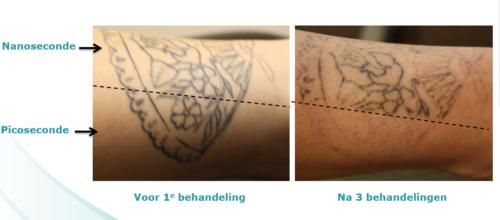 tatoeage verwijderen pico nano