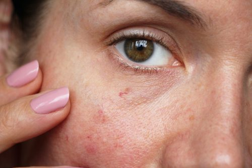 vrouw met ontsierende vaatjes in het gezicht