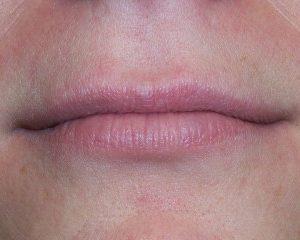 Nationaal Huidcentrum Lipvergroting voor vollere lippen