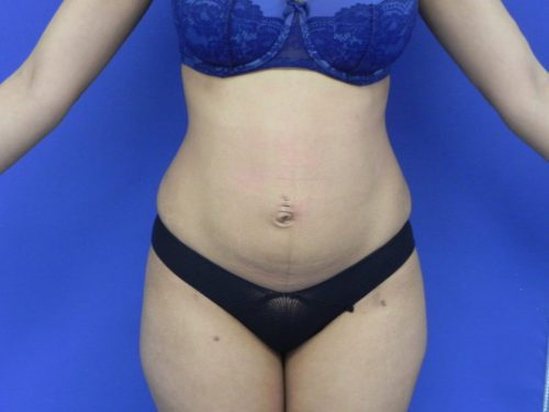 voor liposuctie