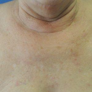 Nationaal Huidcentrum Ouderdomswratten en fibromen