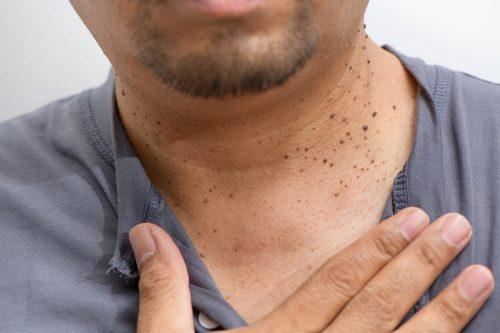 fibromen in de hals van een man