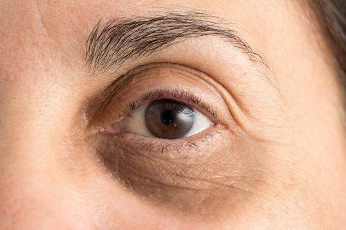 close-up van oog met donkere kringen eronder. Ingevallen en donkere traangootjes