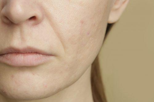 diepe neus lippenplooi opvullen nasolabiale plooi met een filler