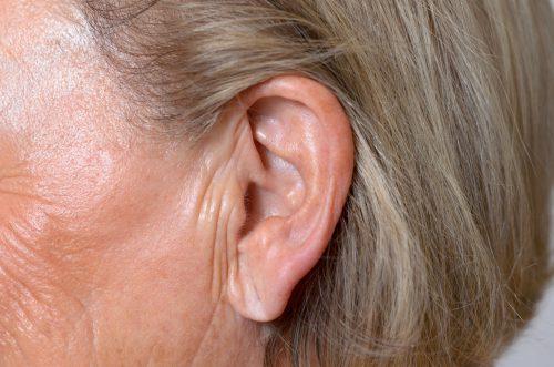 close up van een rimpelige oorlel met volumeverlies van een vrouw van middelbare leeftijd