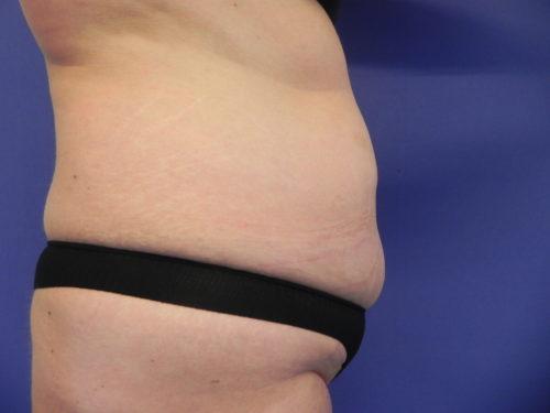 buik voor liposuctie