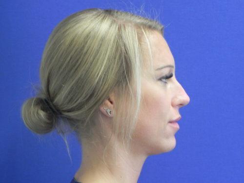 na neuscorrectie met fillers zonder operatie