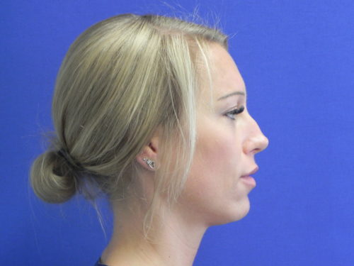 voor neuscorrectie met fillers zonder operatie