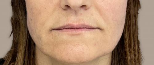 neus lippenplooi na de fillerbehandeling