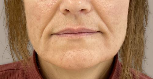 neus lippenplooi voor de fillerbehandeling