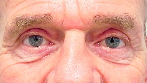 ooglidcorrectie foto na de behandeling
