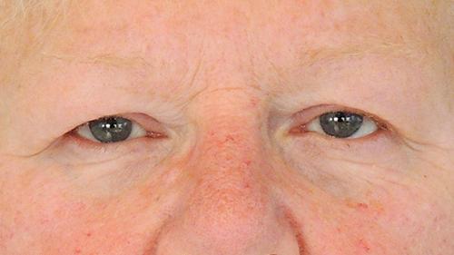 ooglidcorrectie foto voor de behandeling