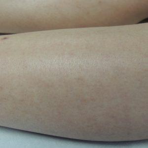 Nationaal Huidcentrum Laserontharing