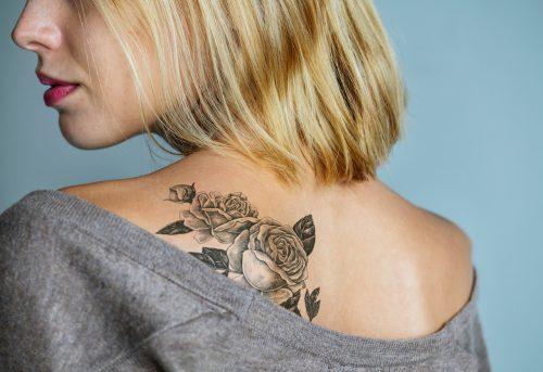 tatoeage-verwijderen