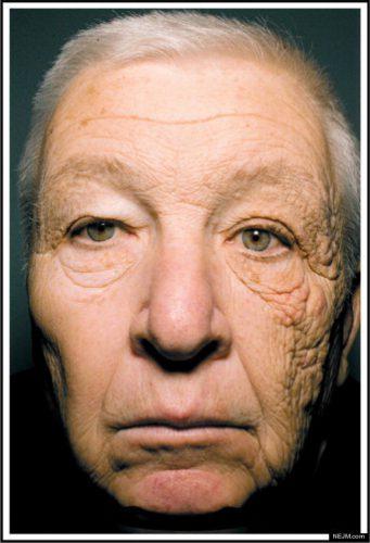huidschade-glas