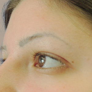 Nationaal Huidcentrum Permanente make-up verwijderen