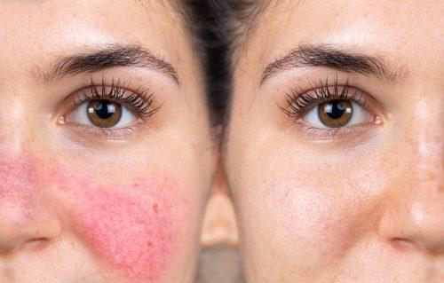 Wang van een jonge vrouw met symptomen van rosacea voor en na de behandelingen