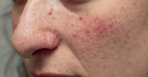 symptomen van rosacea