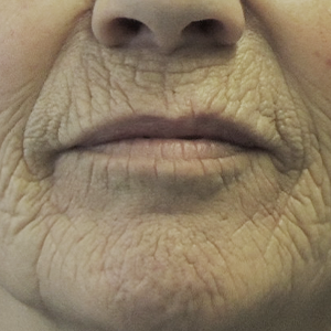 Regio rond de mond van een vrouw voorafgaand aan de CO2 laserbehandeling bij Nationaal Huidcentrum