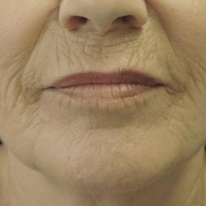 Regio rondom de mond van een vrouw na de CO2 laserbehandelingen bij Nationaal Huidcentrum