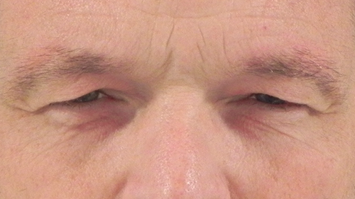 Beeld voor een ooglidcorrectie bij Nationaal Huidcentrum