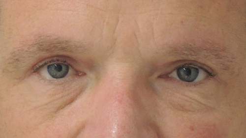 Beeld na een ooglidcorrectie bij Nationaal Huidcentrum