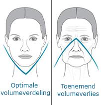 uitleg van volumeverlies in het gezicht