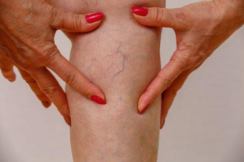spatader of beenvaatjes op de huid van een vrouw