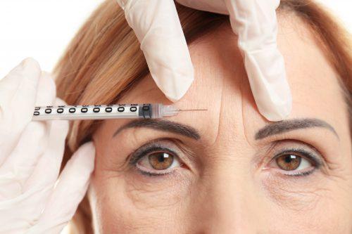 Vrouw met fronsrimpel en Botox injectie